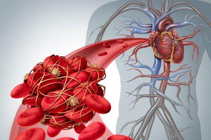 trombofilia, zatorowość płucna, nadkrzepliwość